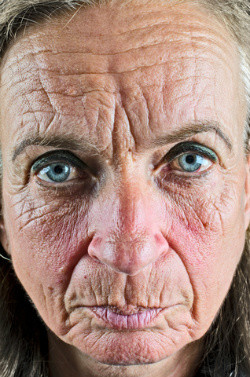 Extreme Dry Wrinkled Facial Skin