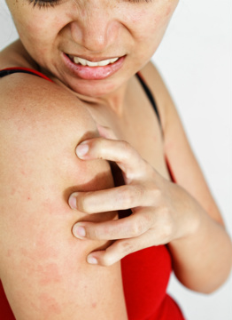Rashes, itchiness and dry skin can be unbearable!