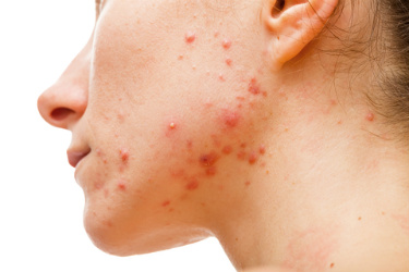 Heartbreak of acne flare up