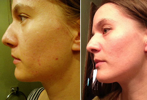 Acne & Oily Skin Before & After