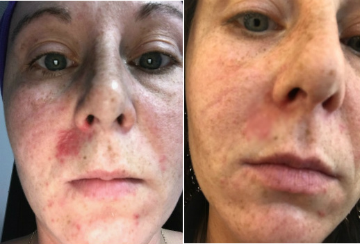 Rash On Facial Skin With Dryness & Hot Spots Before & After
