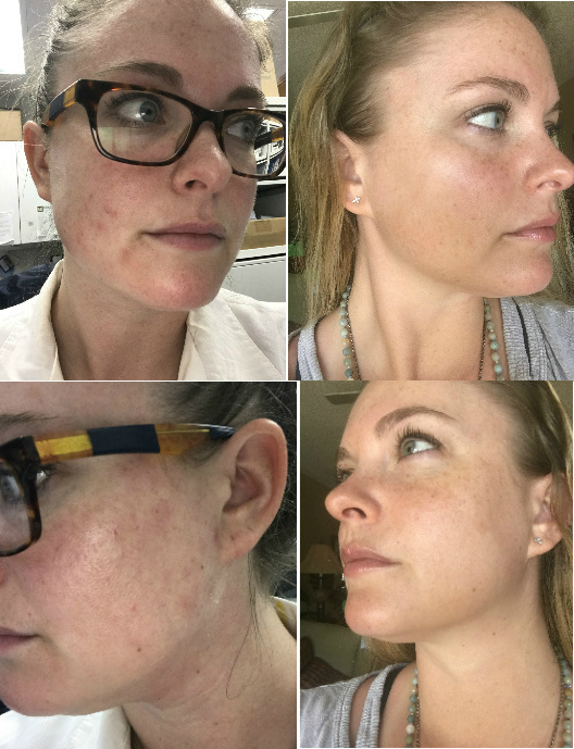 Facial Seborrheic Dermatitis & Rosacea Before & After