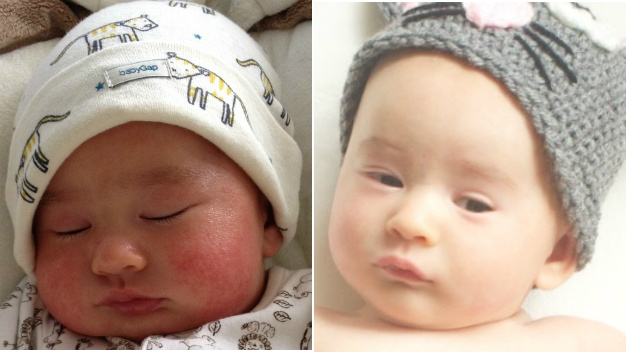 Baby Facial Eczema Before & After