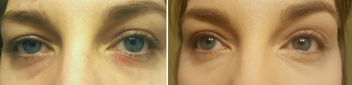Dry Scaly Eyelids Before & After