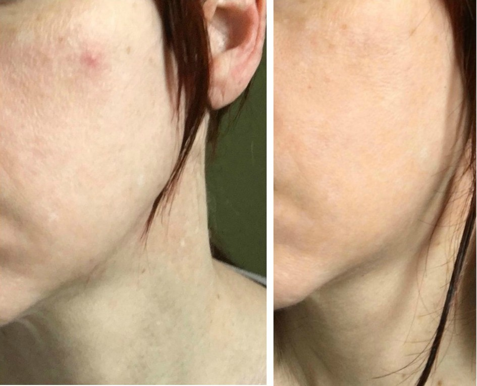 Acne Care For All Ages And Conditions