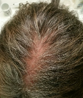 Scalp Ulcers & Blisters & Hair Loss After