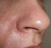 Facial Seborrheic Dermatitis After
