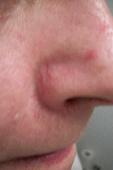 Facial Seborrheic Dermatitis Before