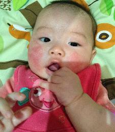 Baby Eczema On Cheeks Before