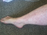 Severe Leg Skin Rash After