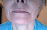 Itchy Facial Rash With Pustules After