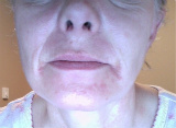 Itchy Facial Rash & Pustules Before