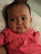 Baby Facial Eczema After