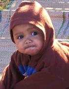 Baby Facial Eczema Before