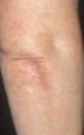 Raised Red Itchy Skin Bumps After