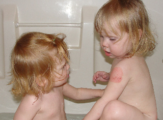 A little sister is concerned about the rash on her sister's arm.