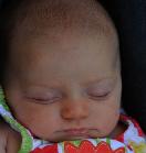 Severe Baby Facial Rash After