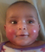 Baby Facial Eczema Before