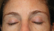 Dry, Itchy Patches On Eyelids After