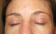 Dry, Itchy Patches On Eyelids Before