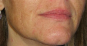 Perioral Dermatitis After