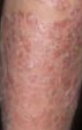 Severe Leg Psoriasis Before