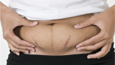 Rapid weight gain can cause breaks in the skin as the skin stretches too fast.
