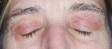 Rash and Swollen Eyelids - Treato