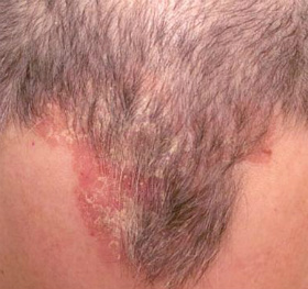 Scales and red itchy scabs on the scalp can be a distinct sign of psoriasis.