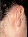 Psoriasis On The Scalp & Behind The Ear After