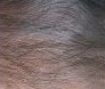 Dry Scalp After