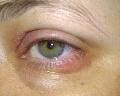 Swelling, Redness & Flaking On Eyelids Before