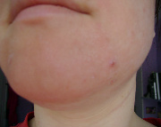 Seborrheic Dermatitis Before