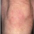 Severe Psoriasis On The Knees After