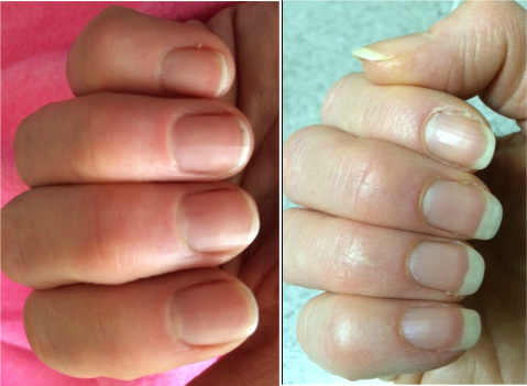 Healthy Nails Before After