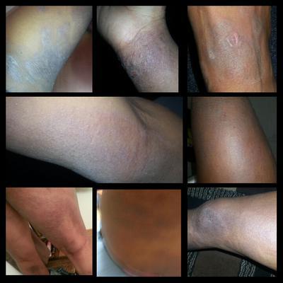Severe Eczema