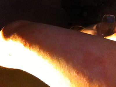Back of my arm