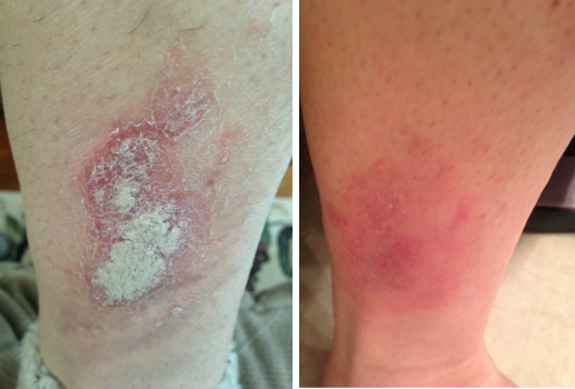 Severe Psoriasis On The Leg Before & After
