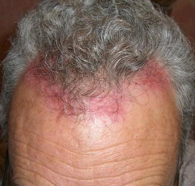 how to get rid of rash on scalp