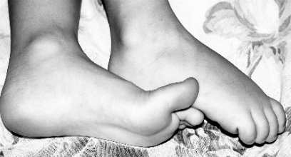 Diabetes Is a serious condition that can lead to problems on your feet