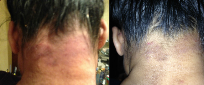 Skin Rash & Eczema On The Nape Of The Neck Before & After