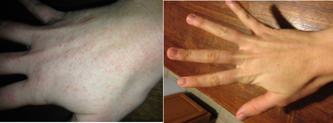Contact Dermatitis On Hands Before & After