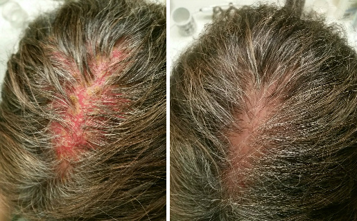 Scalp Blisters & Hair Loss Before & After