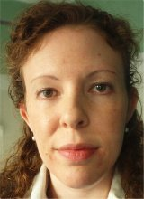 Facial Hyper Pigmentation, Acne & Sun Damage Before