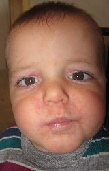 Young Child's Facial Rash Before