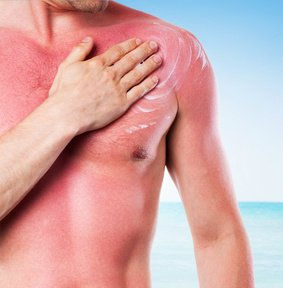 Skin That Has Burned From The Sun Needs Special Care