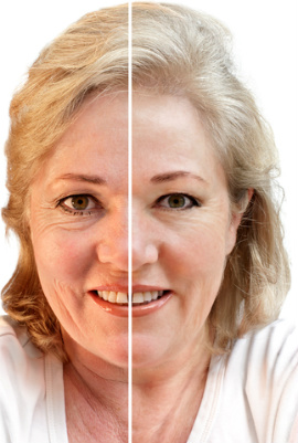 Wrinkles and crepey skin can make us feel old