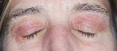 Terribly Itchy Eyelids Before