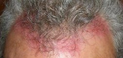 Red, itchy and scaley scalp can really interfere with facing the world